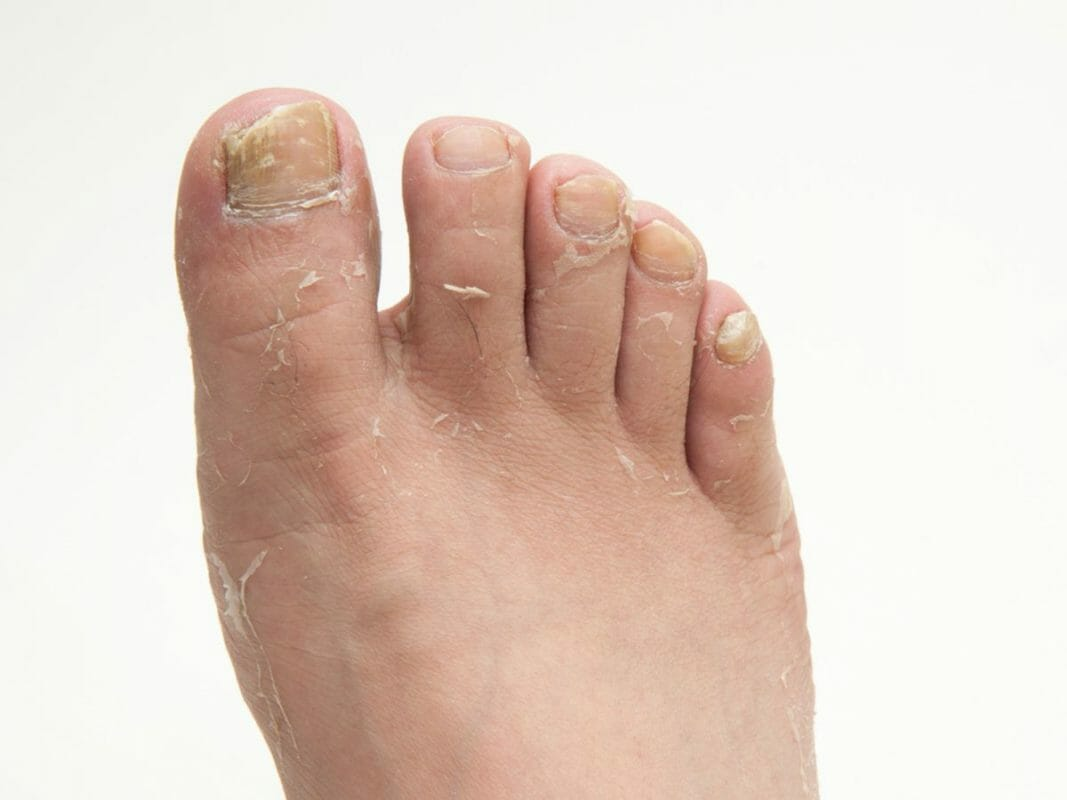 health infections athletes foot